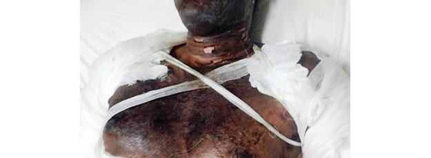 Homem queimado com óleo de cozinha e petróleo, supostamente pela esposa, perdeu a vida na manhã de hoje no Hospital Central de Maputo. A Vítima deu entrada na unidade sanitária, nos serviços de cirurgia